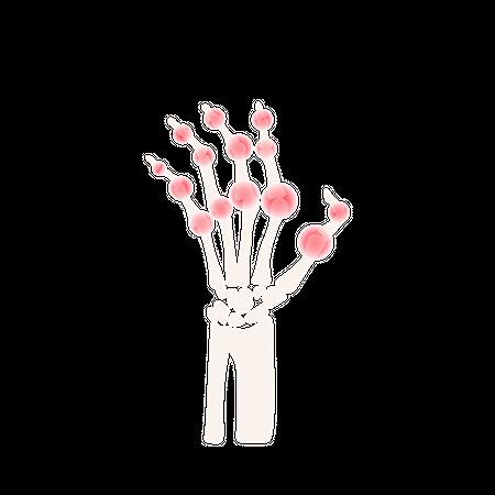 Arthritis Hand Rheumatoid Disease Illustration