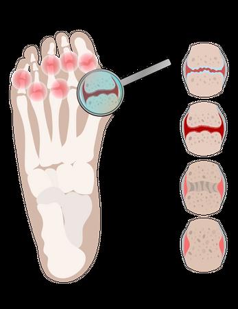 Arthritis Leg Rheumatoid Chronic Disease Illustration