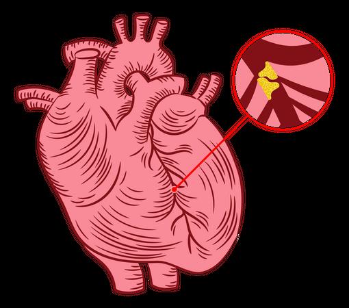 Atherosclerosis Illustration