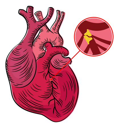 Atherosclerosis Disease Illustration